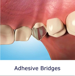 Adhesive Bridges