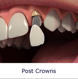 Post Crowns